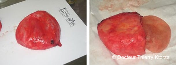 Retrait De Coque Après Implants Mammaires