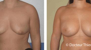 La mastopexie ou le lifting des seins 2
