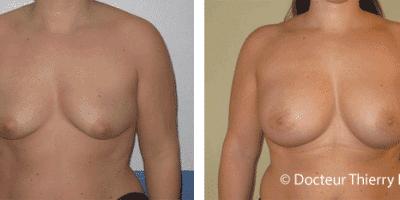 Comment corriger les seins qui tombent sans cicatrices ? 2