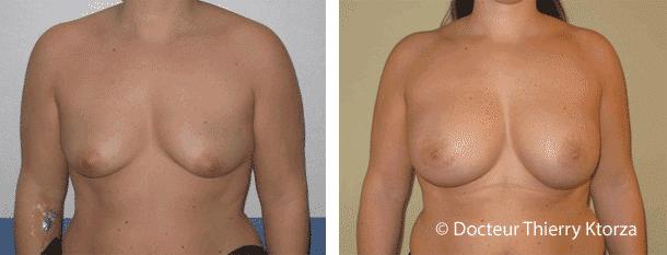 Comment corriger les seins qui tombent sans cicatrices ?