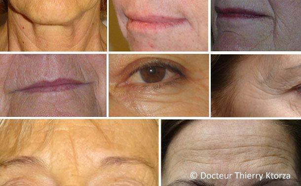 Les différentes rides du visage et traitement possible avec le botox