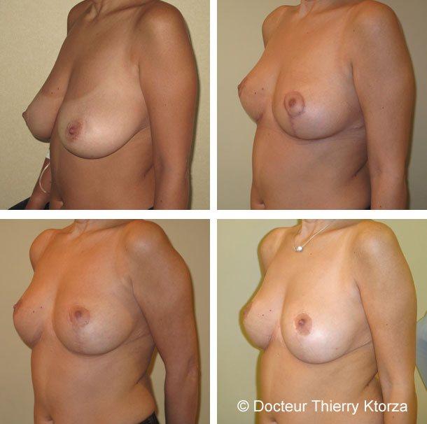 Photo avant et après une réduction mammaire avec évolution des cicatrices à deux mois, 9 mois et un an