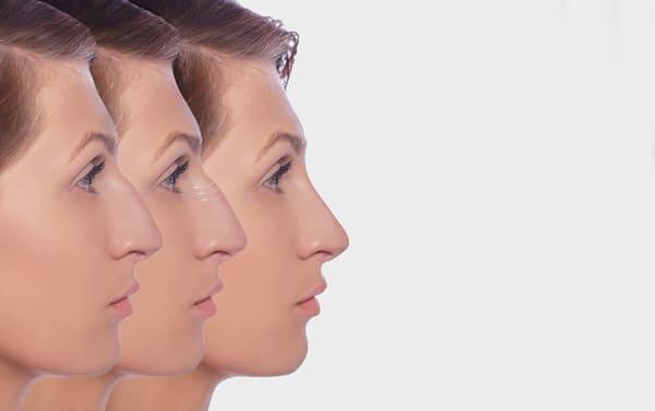 Comment faire disparaître une bosse sur le nez ?