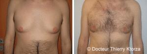 La réduction mammaire concerne de plus en plus d'hommes