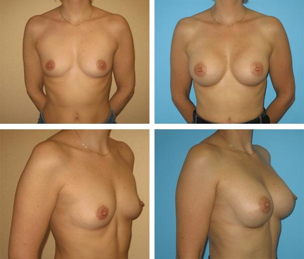 Exemple avant / après d'une augmentation mammaire par implants