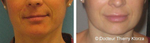 Injection d'acide hyaluronique au niveau des lèvres
