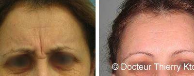 Photo avant et après une injection de botox