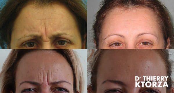 Photos avant et après une injection de botox