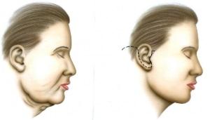 Le lifting du visage 1