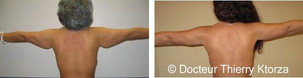 lifting-bras-avant-apres-femme