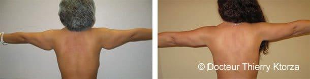 Lifting des bras et liposuccion