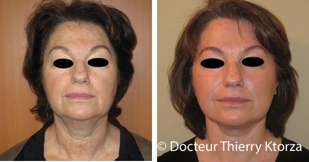 Le lifting cervico-facial pour avoir un visage jeune et harmonieux