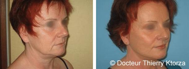 Lifting cervicofacial classique