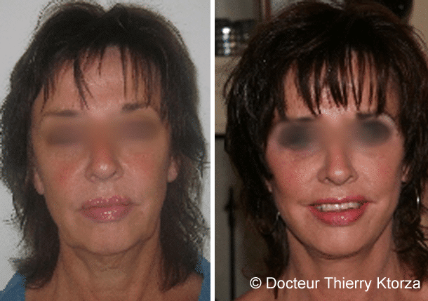 Patiente de 52 ans demandeuse d'un lifting cervicofacial