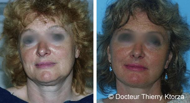 Lifting cervicofacial classique chez une femme de  53 ans