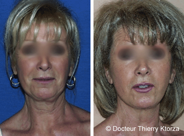 Patiente de 61 ans demandeuse d'un lifting cervicofacial pour rafraîchir l'ovale de son visage