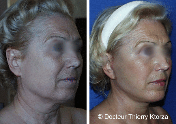 Patiente de 65 ans demandeuse d'un lifting cervicofacial