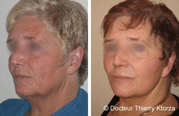 Patiente de 66 ans demandeuse d'un lifting cervicofacial
