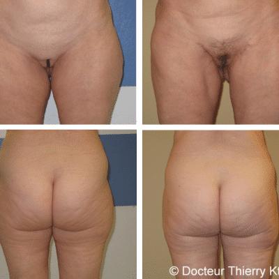 Photos avant et après en chirurgie esthétique 1