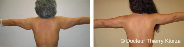 Lifting des bras avant et après
