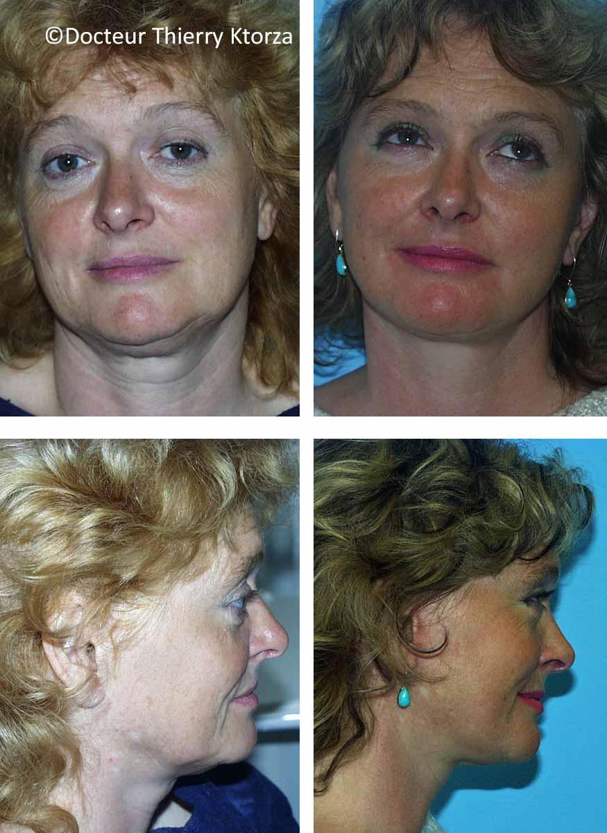 lifting du visage chez une femme de 50 ans