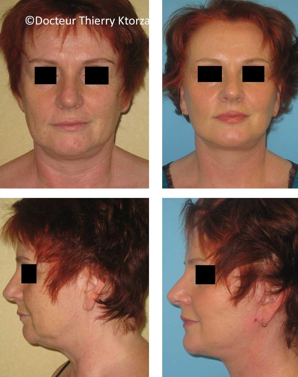 lifting du visage chez une femme de 56 ans