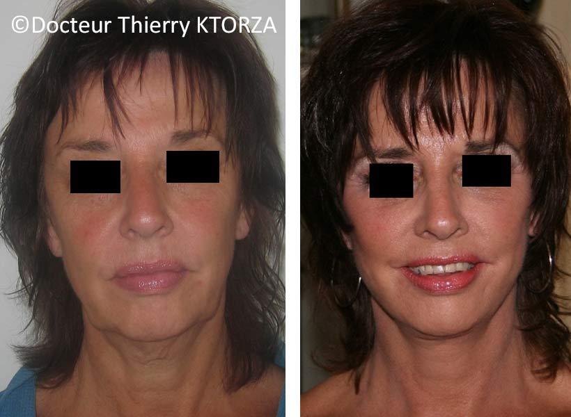 lifting du visage chez une femme de 58 ans