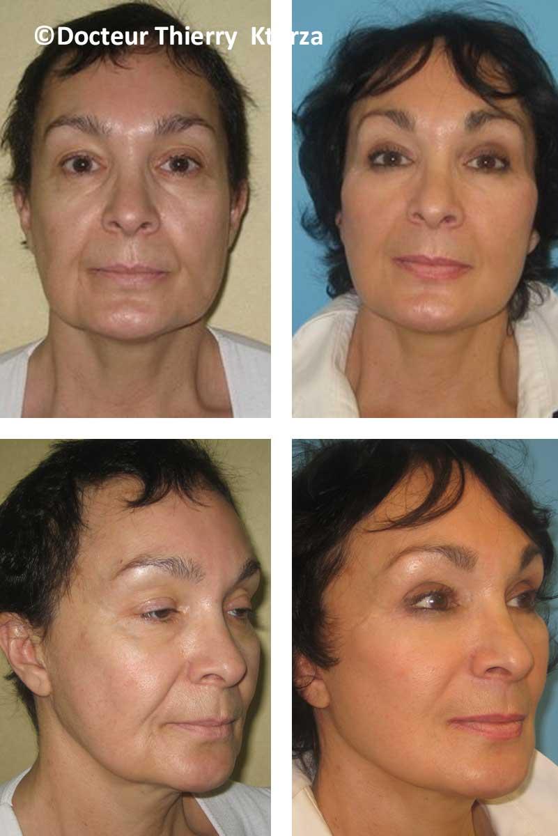 lifting visage femme 59 ans