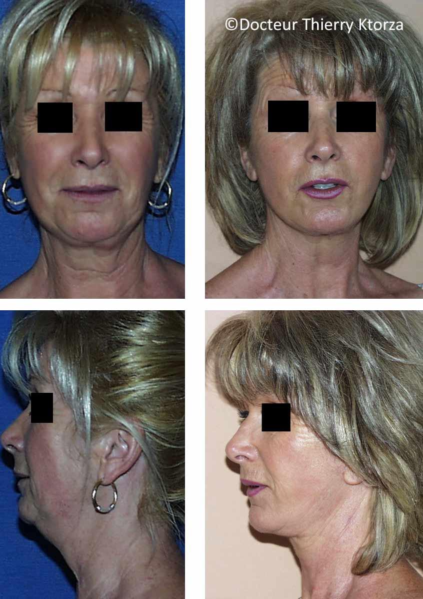 lifting du visage chez une femme de 61 ans