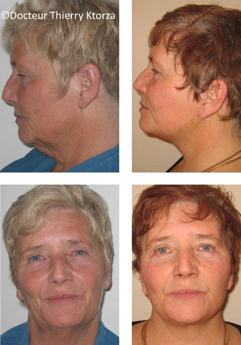 lifting du visage chez une femme de 66 ans