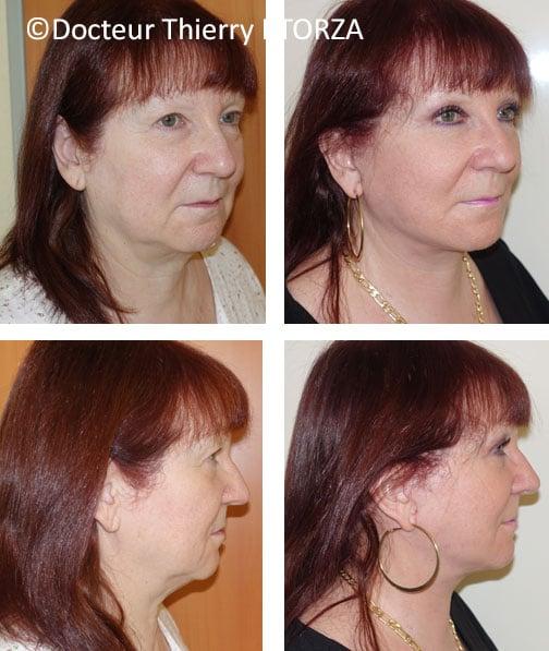 lifting cervicofacial avec blépharoplastie