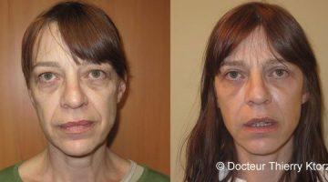 Lipofilling (avant et après)