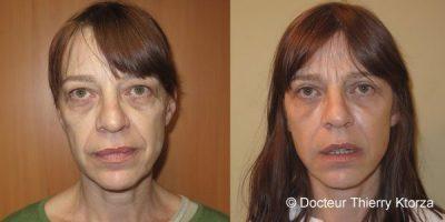 Gommer les rides d'expressions avec la chirurgie esthétique 1