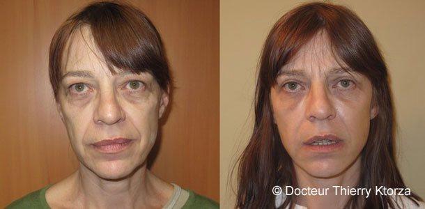 Gommer les rides d'expressions avec la chirurgie esthétique