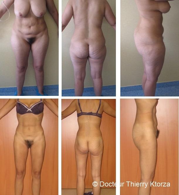 Combien peut-on retirer de litres de graisse au cours d'une liposuccion ?