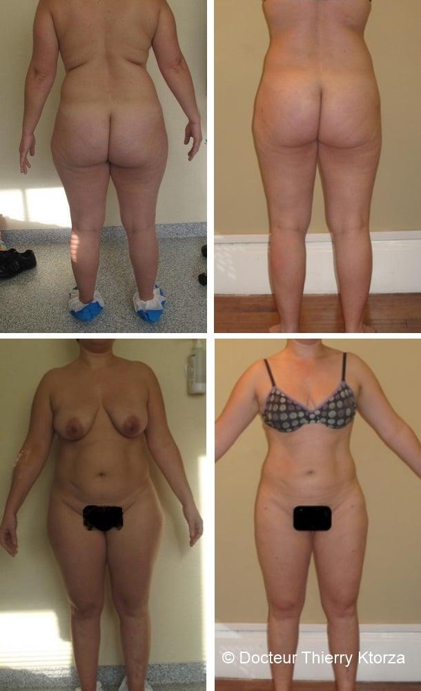 Photo avant et après une liposuccion au cours de laquelle 6 litres de graisse ont été retirés