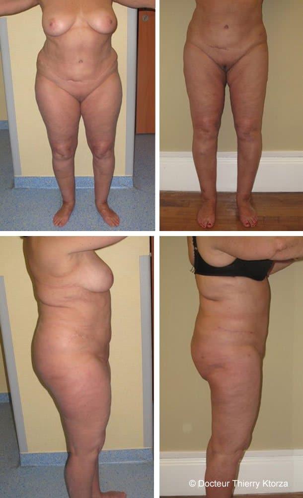 patiente de 70 ans a eu une liposuccion circulaire de  cuisses, des hanches et du ventre