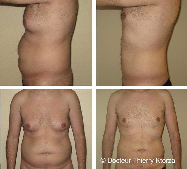 Photos avant et après une liposuccion chez un homme de 28 ans