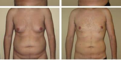 La liposuccion est-elle efficace chez les hommes ? 6