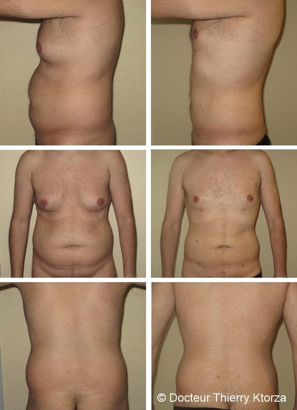 La liposuccion est-elle efficace chez les hommes ?
