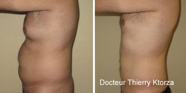 Les hommes ont de plus en plus recours à la liposuccion