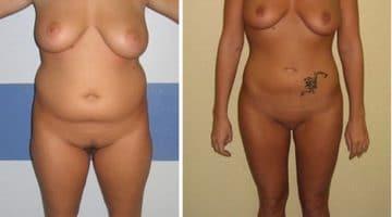 Photo avant et après une liposuccion