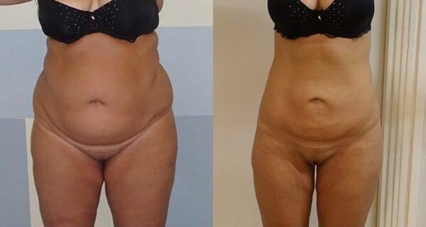 Photos avant et après une liposuccion