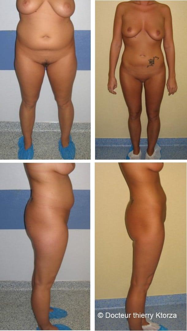 Photo d'une patiente avant et après une liposuccion associée  un régime alimentaire