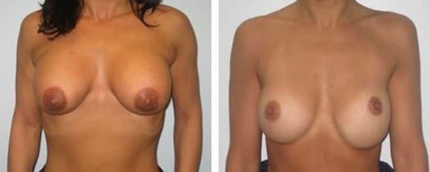 Exemple de mauvaises positions pour des implants mammaires