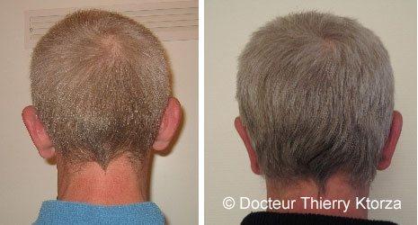 Photo avant et après une otoplastie (oreille décollée)