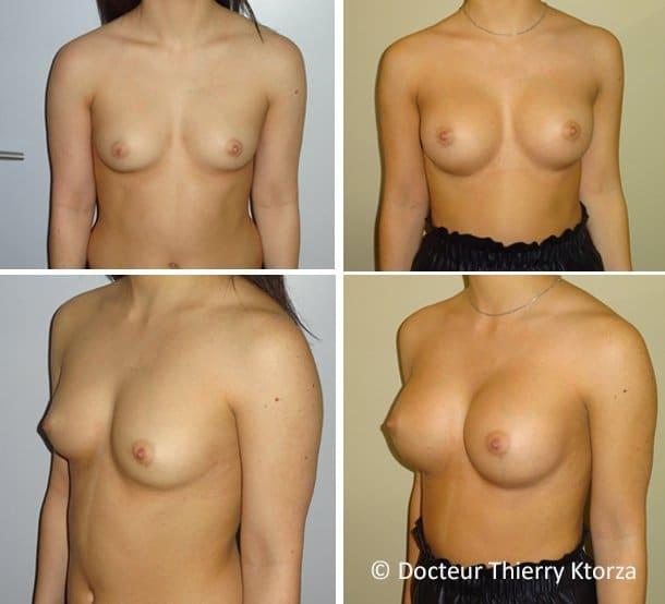 Photo avant et après une augmentation mammaire par implants anatomiques de 300 cc