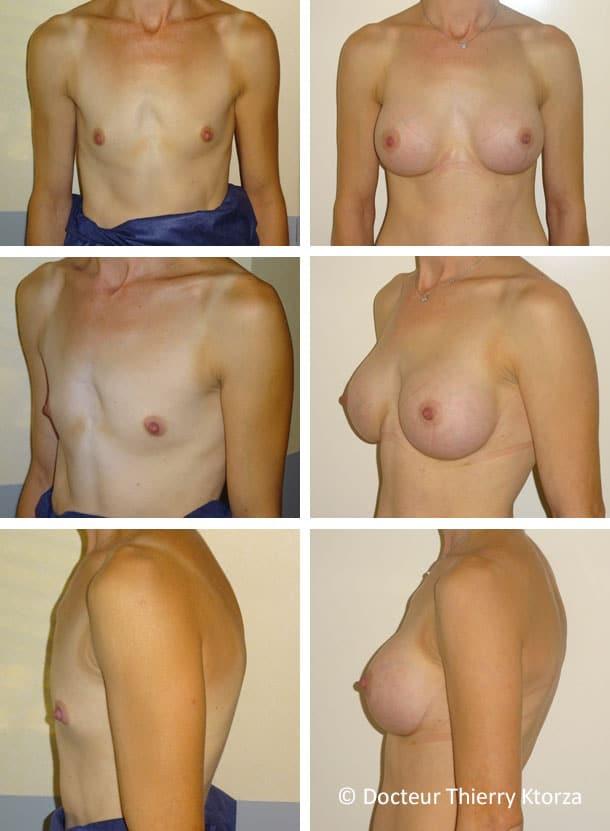 Photo avant et après une augmentation mammaire prise en charge par la sécurité sociale