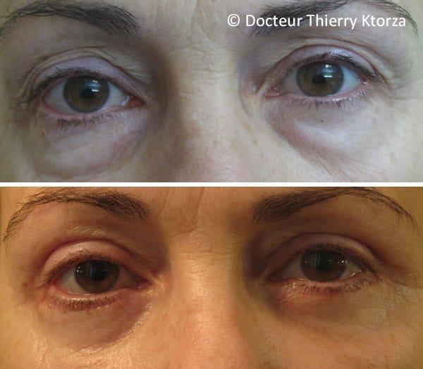 Photo avant et après une blépharoplastie supérieure et inférieure chez une femme de 55 ans