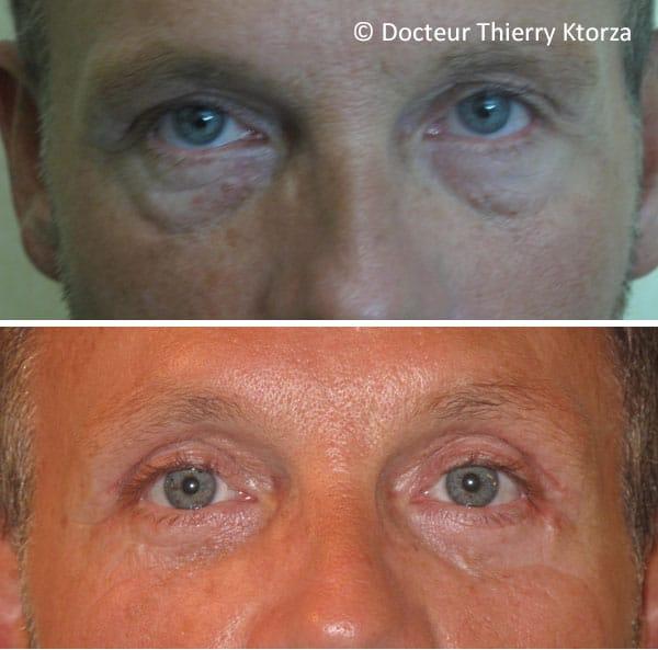 Blépharoplastie photos avant et après (paupières homme 52 ans)